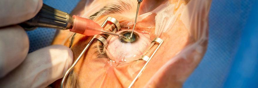 Myopie opération